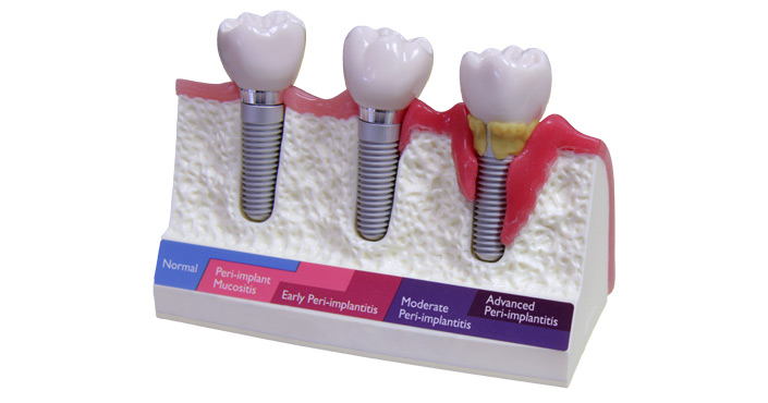 Treatment of Peri-implant Diseases